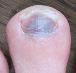 左足の人差し指の爪が紫